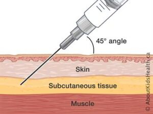 Injection subcutaneous BDsyringe layers EQUIP ILL EN